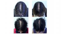 Effect of a nutritional supplement on hair loss in women